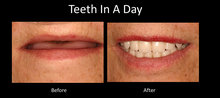 all on four implants austin dental implant center