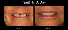 oral surgery procedures austin dental implant center